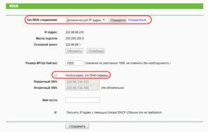 Настройки NetByNet динамический Ip